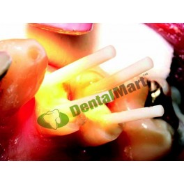 http://dentalmart.in/1318-thickbox_default/contec-blanco-fiber-post.jpg