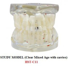 https://www.dentalmart.in/1384-thickbox_default/study-model-clear-mixed-age-with-carries-.jpg